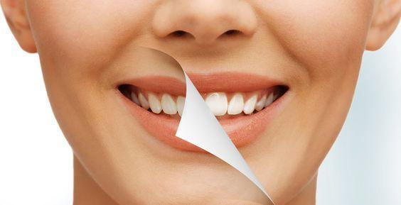 Cea mai bună albire a dinților din Cluj