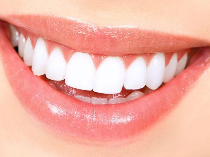 Cum să-ți menții dinții albi după procesul de albire dentară