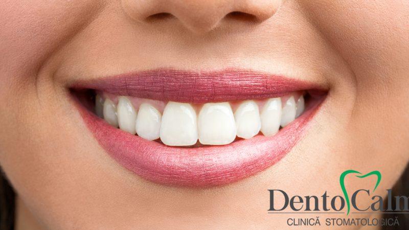 Albirea dinților ca metoda de asigurare a sanatatii dentare